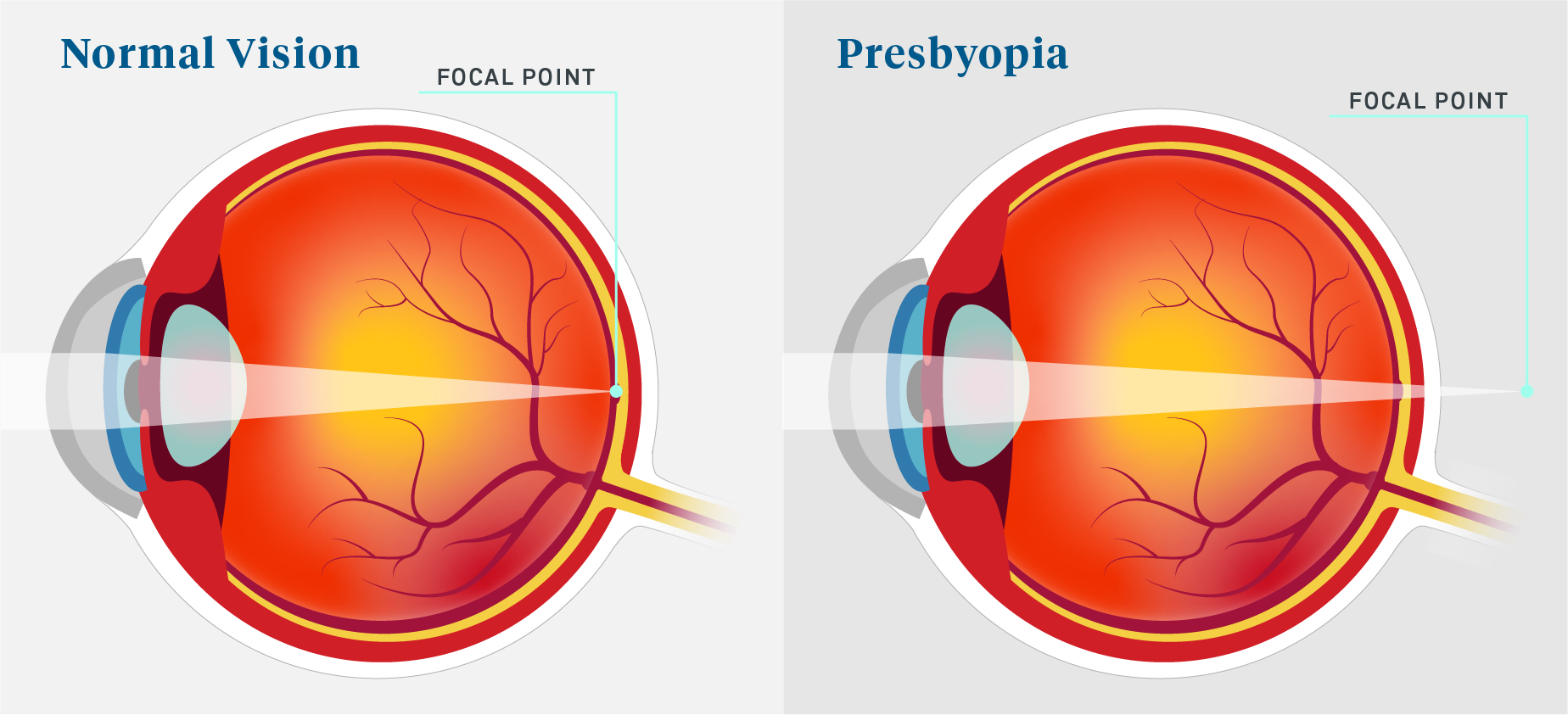 Normal Vision vs. Presbyopia