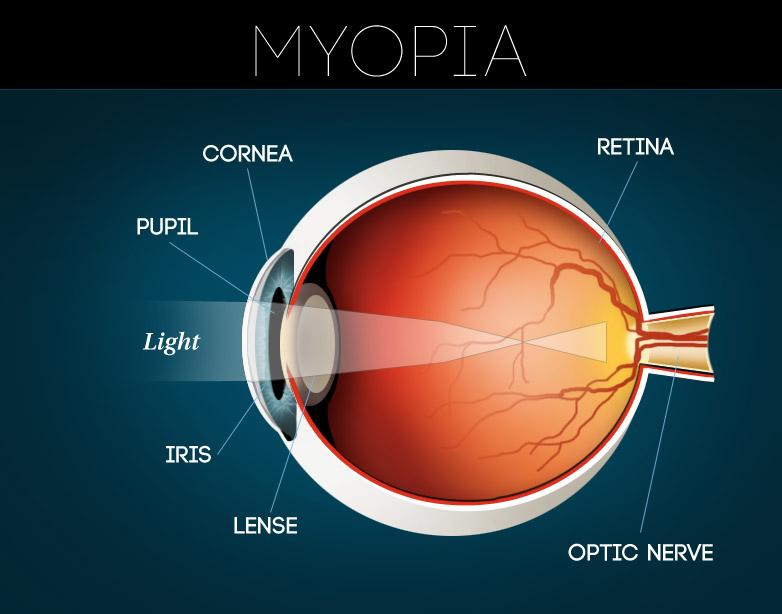 SPECTRUM Optometry - Bringing Vision to Life